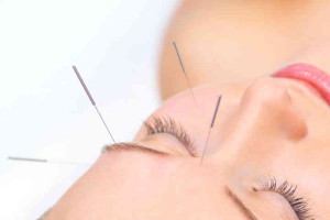 Facial Rejuvenation,Facelift,Cosmetic Acupuncture